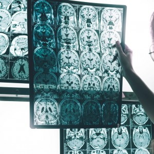 An International Effort: The Next Steps in Facing Alzheimer's Disease